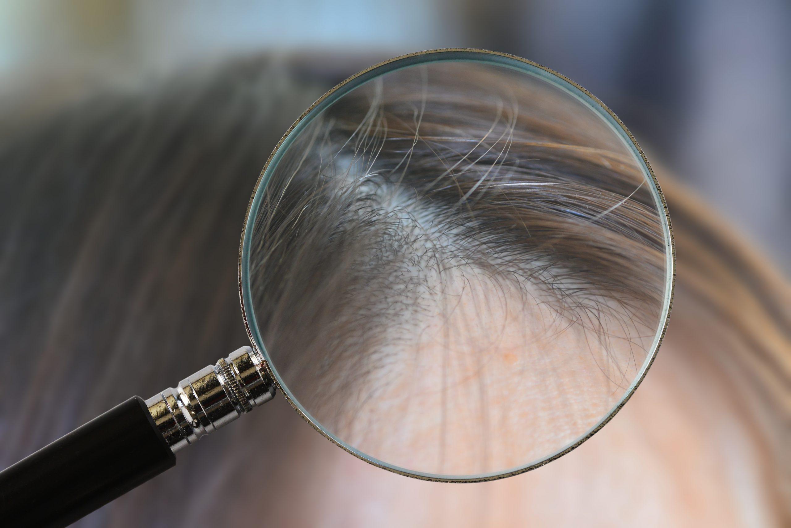 白髪は再び黒髪に生まれ変われる